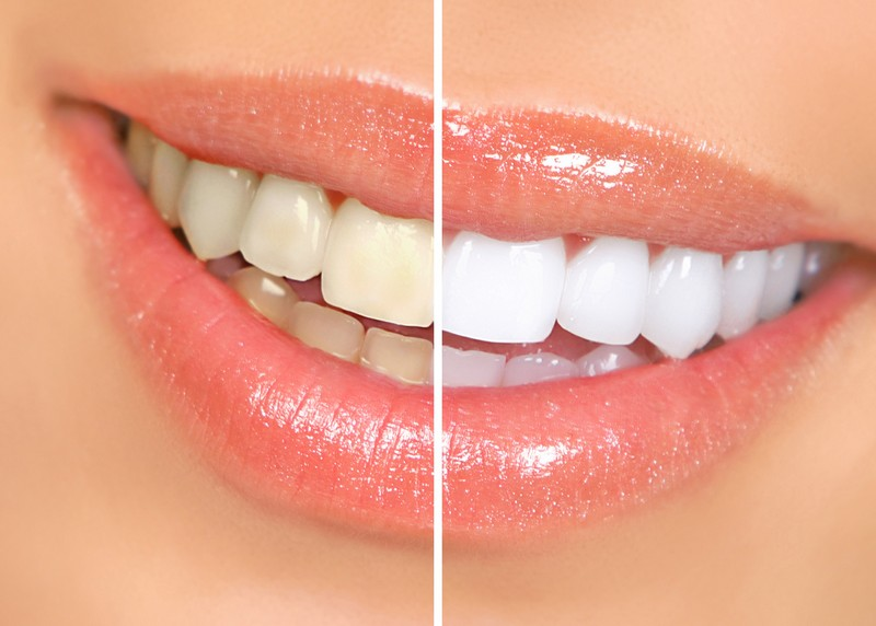 teeth whitening services Concord and Charlotte, NC